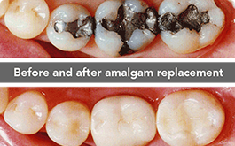 Removal of silver fillings